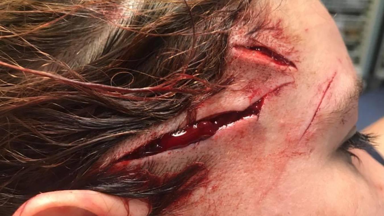 La victime souffrait d'importantes blessures