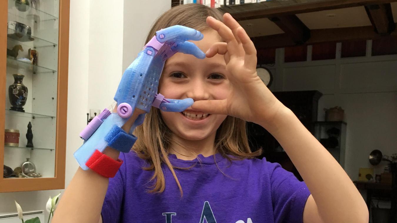 Un Coulonnois a rejoint le collectif e-Nable, qui fabrique des prothéses grâce à l'impression 3D
