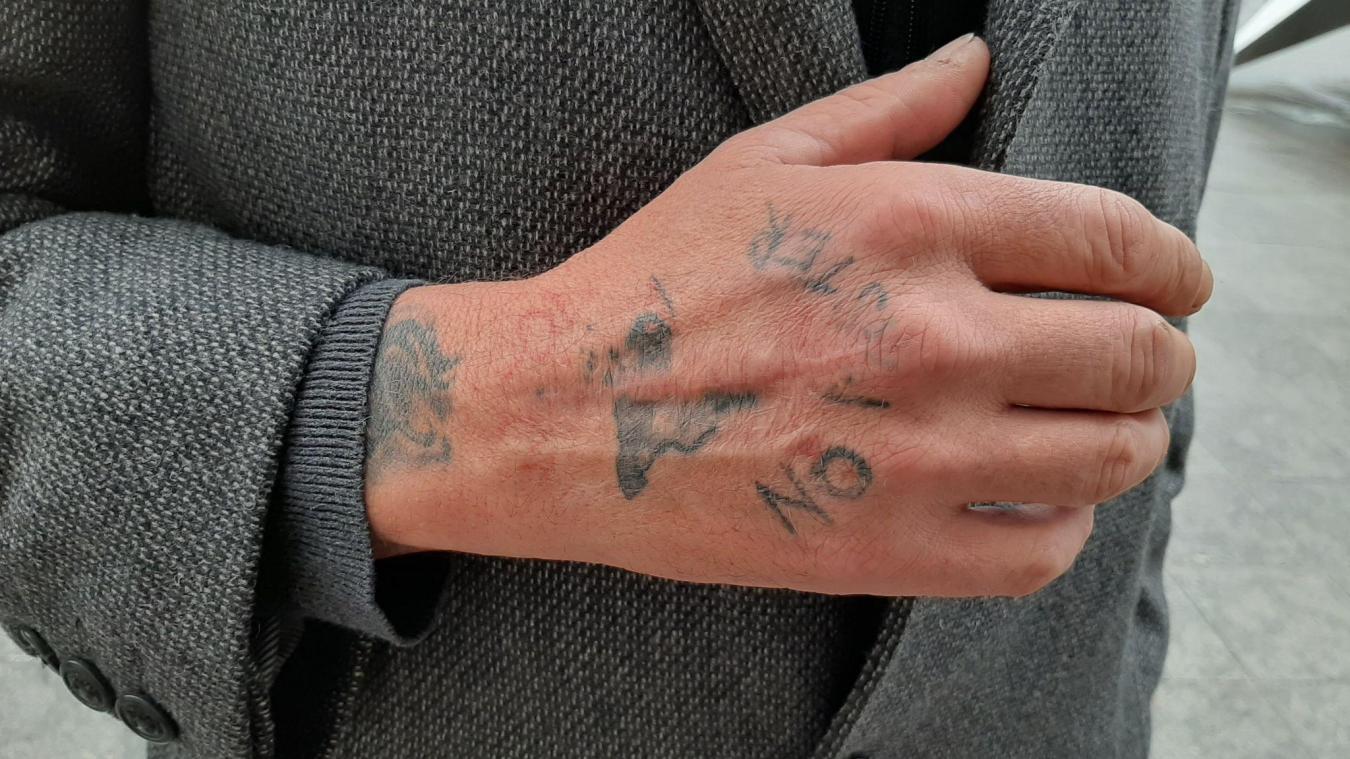 L'Isberguois s'était fait tatoué à Saint-Venant, en 2018. Depuis, il souffre toujours de la main.
