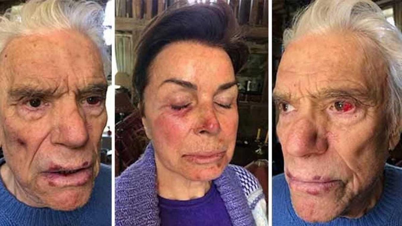 Bernard Tapie et son épouse ont été passés à tabac par quatre cambrioleurs.