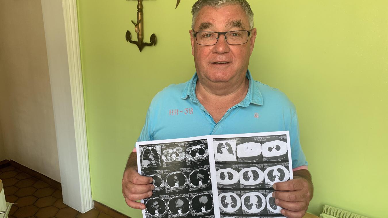 En décembre 2020, Jean-Claude Ghelein a passé un scanner qui a révélé la présence de plaques pleurales, mal typique de l'amiante. Indemnisé de son préjudice d'anxiété le mois dernier, il va désormais mener un autre combat...